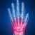 Hand Surgeon Houston TX